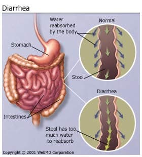 Causes for prolonged diarrhea in adults