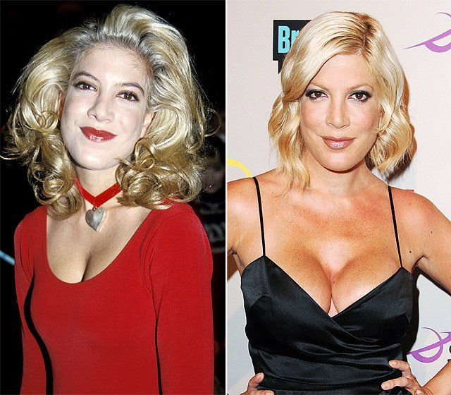 Tori spelling breast pictures