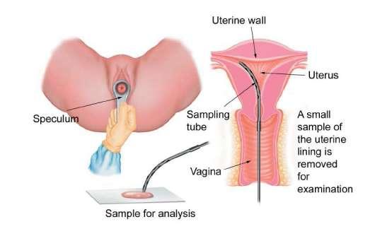 Speculum inside the vagina