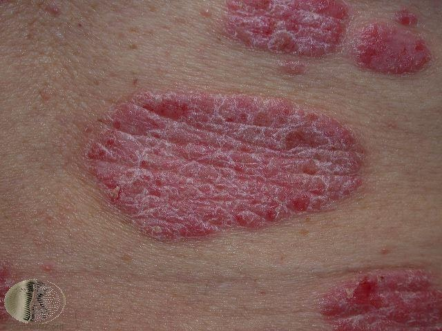 Common skin rashes in adults