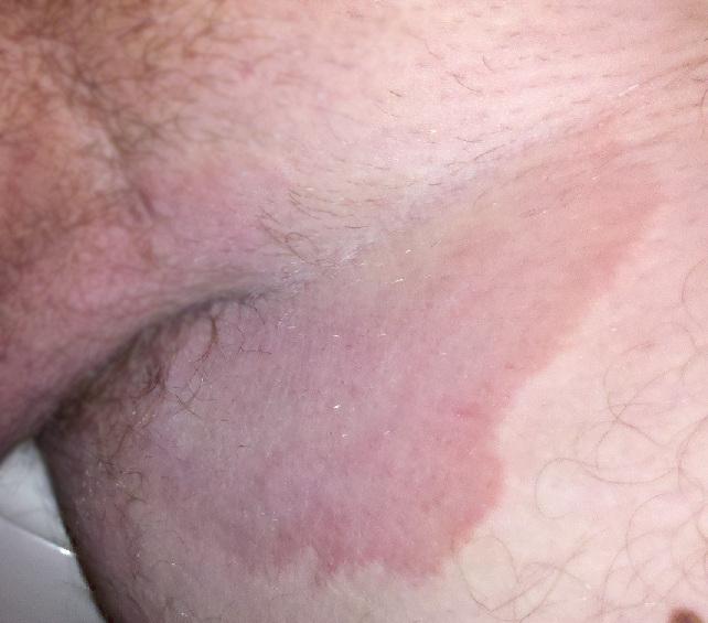 Pigmented areas near anus