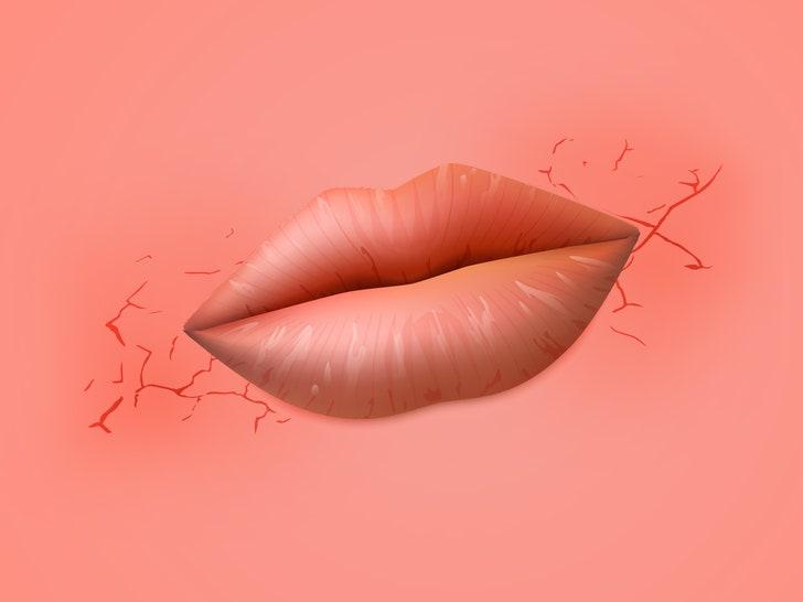 Vaginal dryness and cracking