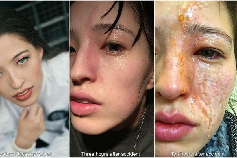 Before and after image facial burns