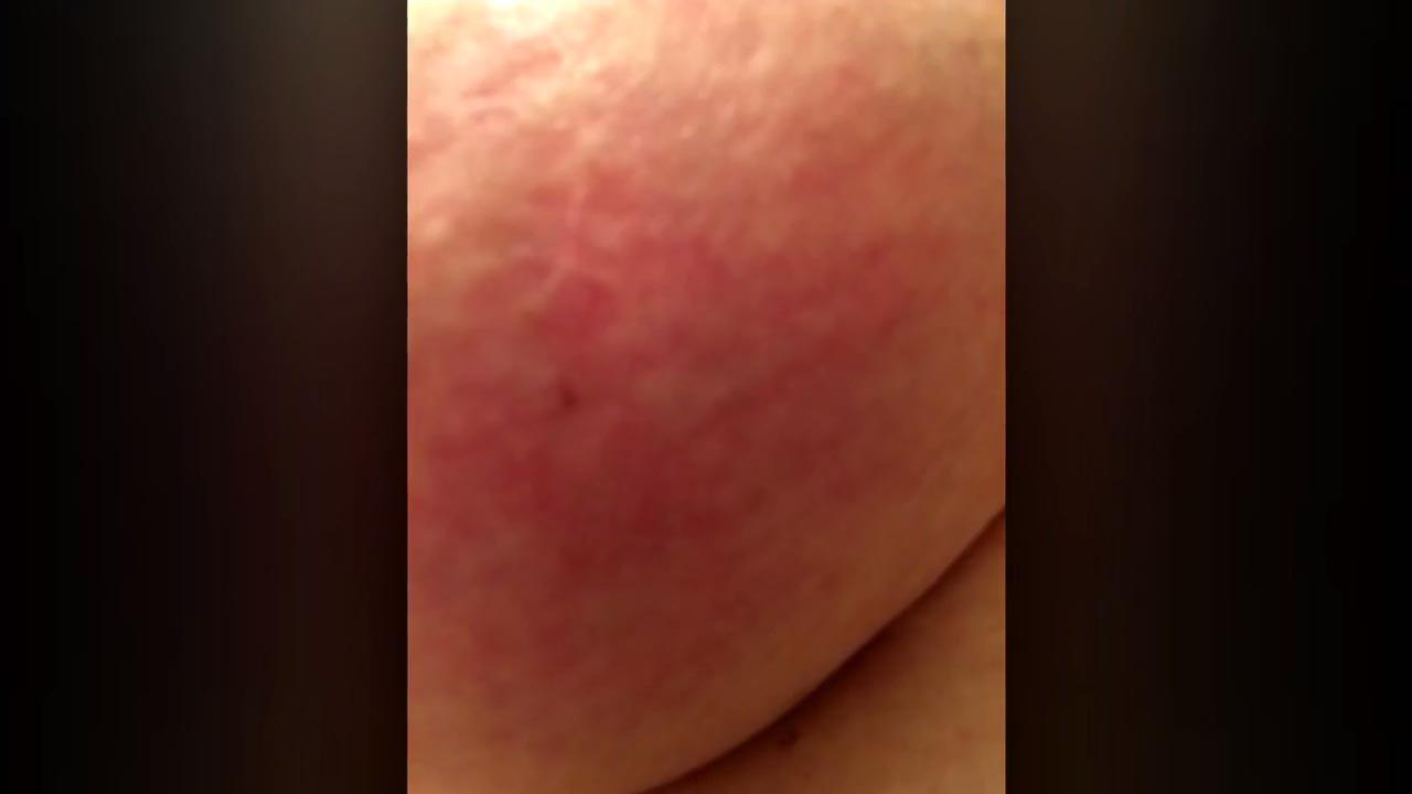 Red blotch on breast